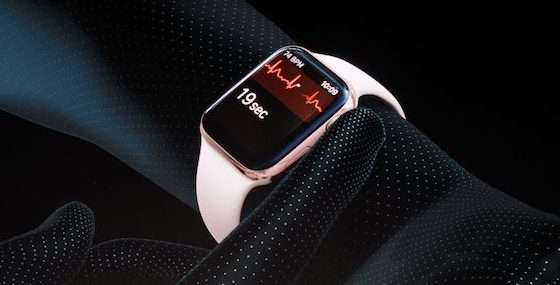 apple watch ecg - parere cardiologo
