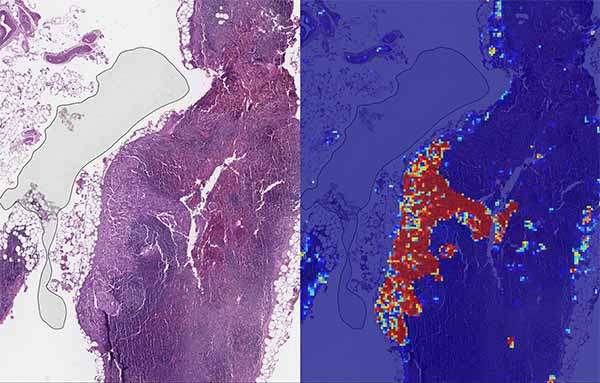 L'impiego dell'IA sviluppata da Google per l'analisi delle immagini cliniche