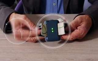 Nightwatch, un bracciale smart contro l'epilessia