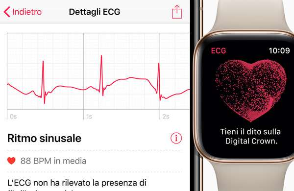 Apple Watch Con Ecg Anche In Italia Pro E Contro
