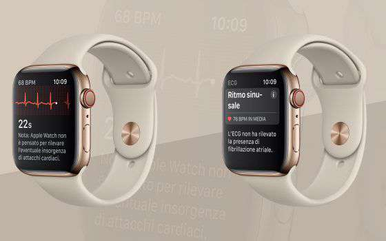 La fibrillazione atriale rilevata da Apple Watch