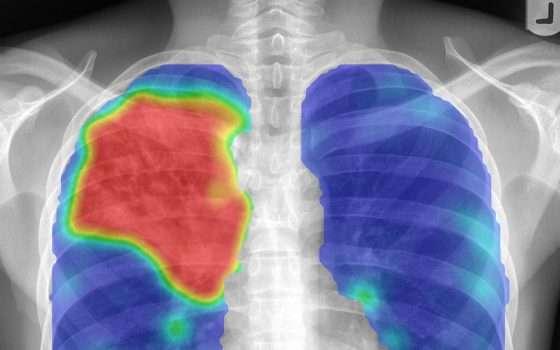 Tra 10 anni, i reparti di patologia saranno digitalizzati