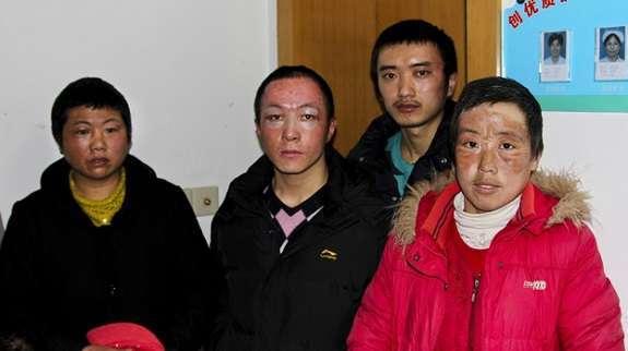 una foto di alcuni dei dipendenti feriti dell'incidente alla pegatron
